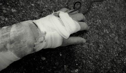 Bedrijfsongeval met handletsel of vingerletsel